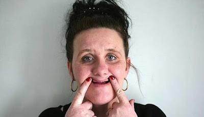 Alison Divers kehilangan gigi bagian atasnya