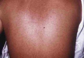 Penyakit aneh Virus Marburg