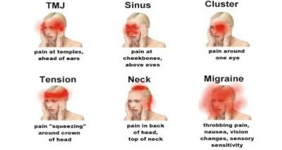 Jenis - jenis sakit kepala