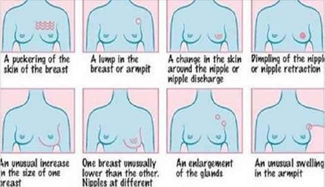 Gejala Kanker Payudara yang Bisa Dilihat Secara Fisik