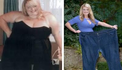 Kisah wanita obesitas