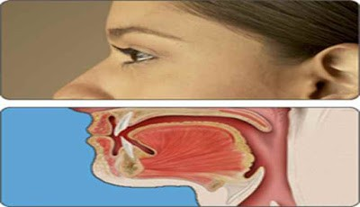 Gejala Awal Kanker Tenggorokan yang Tidak Boleh Disepelekan