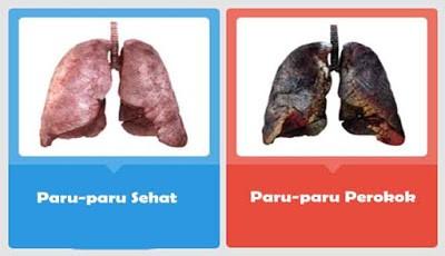 Kondisi Paru-paru Akibat Rokok yang Berlebihan