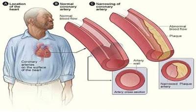 Ilustrasi: Sirkulasi darah yang normal dan tidak normal