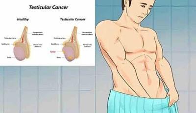 Kanker testis