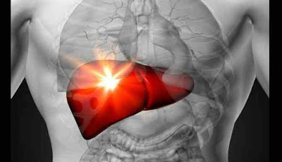 Penyakit pembengkakan hati
