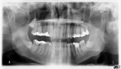 Mistri gigi meledak masih belum terpecahkan