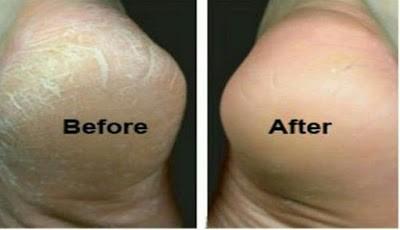 Cara menyembuhkan tumit kaki pecah