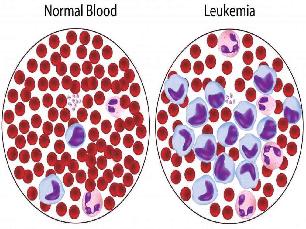 Penyakit kanker darah
