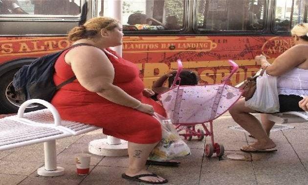 Wanita obesitas