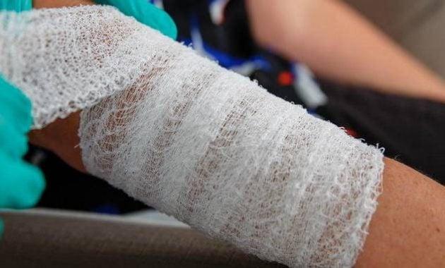 Menyembuhkan luka