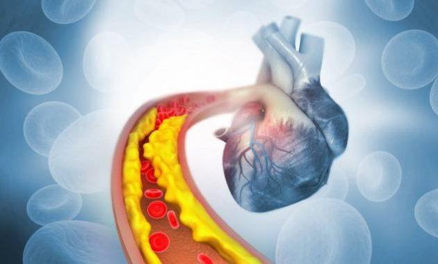 Ilustrasi penyumbatan pembuluh darah