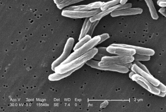 Ilustrasi gambar bakteri virus tuberkulosis